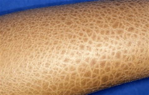 ichthyosis images ichthyosis vulgaris causes treatments water s edge