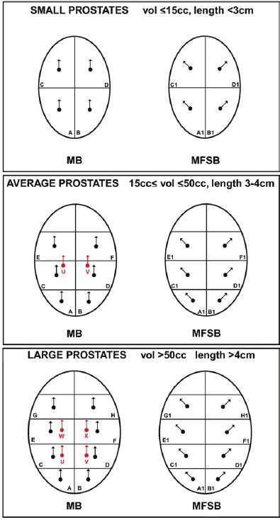 sextant prostate biopsy proposed biopsy scheme based on size of the prostate where