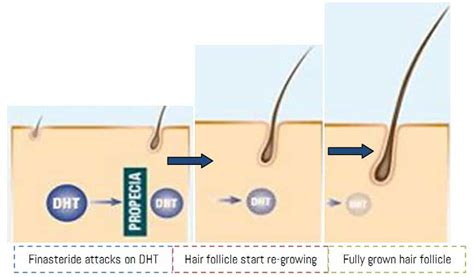 finasteride dosage uses side effects for hair loss finasteride related keywords finasteride long tail