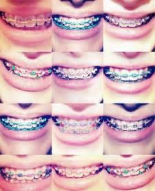 Best Color For Girls 25 best ideas about braces colors on pinterest nail