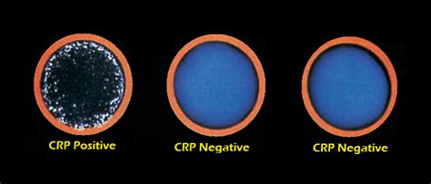 c protein test results c reactive protein crp test introduction principle