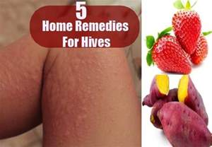 home remedies for hives home remedies for hives treatments and cure for