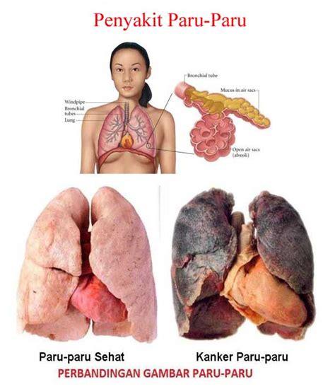 jenis gejala penyakit paru paru lengkap