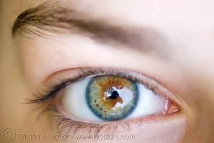 Most Beautiful Colors Beautiful Eye Iris Freckles