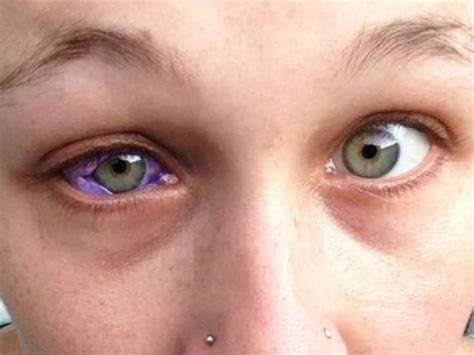 tattoo eyeball purple model s eyeball tattoo leaves her partially blind makes