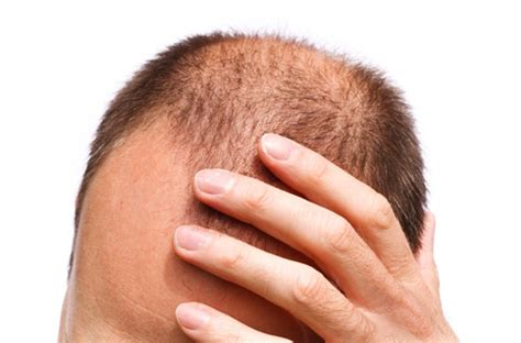 male pattern hair loss cure 2015 what could be causing hair loss at home abn