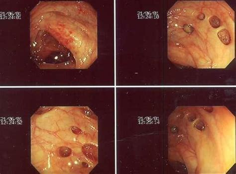 Blood In Stool After Colonoscopy by What Does The Inside Of Your Colon And Intestines Look
