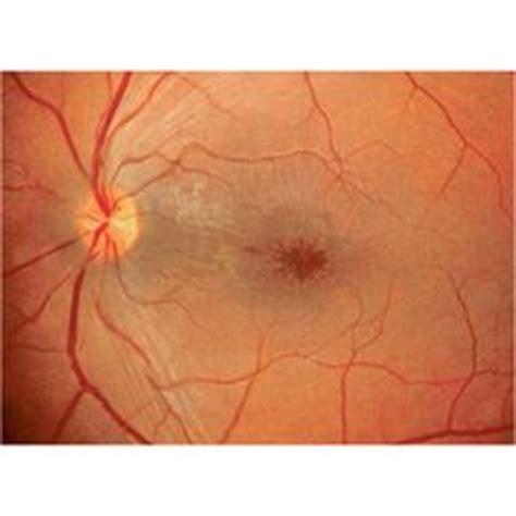 retinal pattern dystrophy icd 9 ocular dz on pinterest lashes greek words and genetics