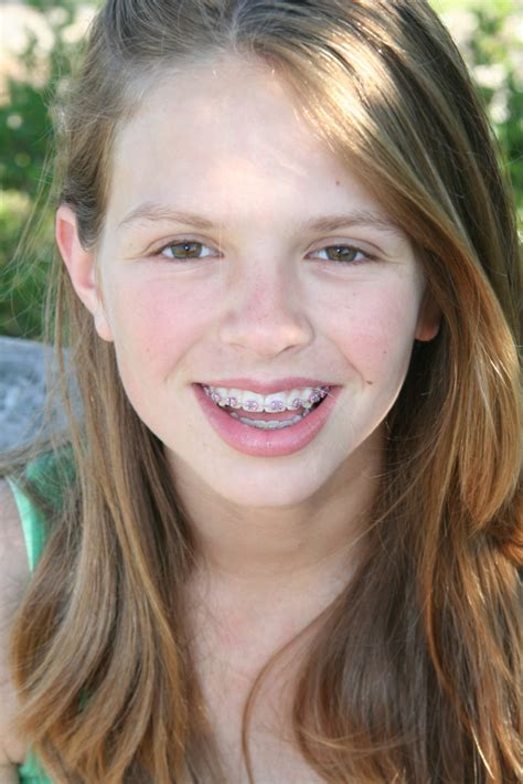 young teen girl face with braces children and adult braces andover and north andover ma