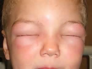 human respiratory virus healthhypecom