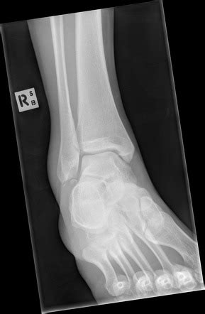 Ankle lateral malleolus avulsion fracture with os