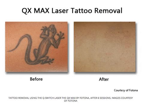 tattoo laser removal brisbane safe removal brisbane welcome to city removal