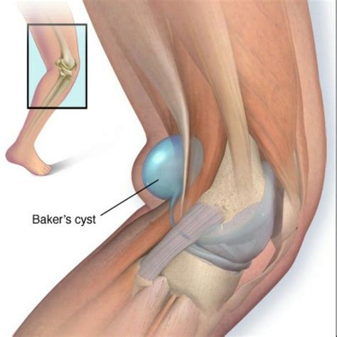 tattoo behind knee healing 9 best pop cyst images on pinterest baker s cyst bakers