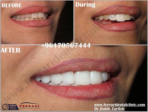 top 28 cost veneer tooth veneers cost dental veneers