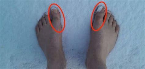best running shoes for hallux rigidus best hallux rigidus shoes for a stiff big toe