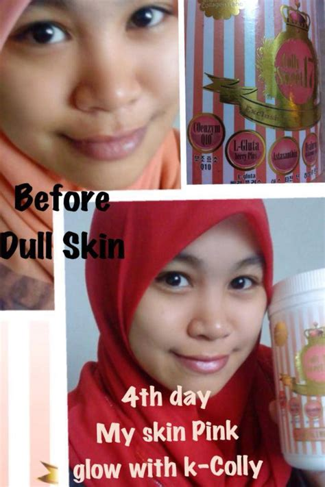 Collagen K Colly niena s shop testimoni k colly sweet 17