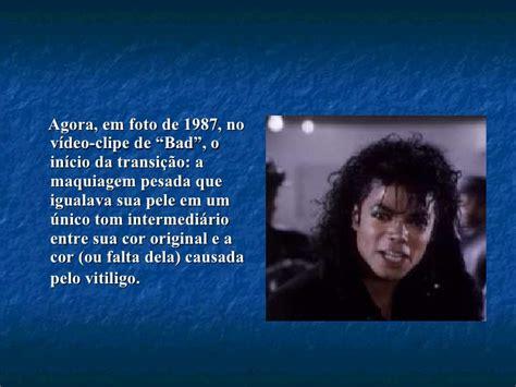 michael jackson e o vitiligo