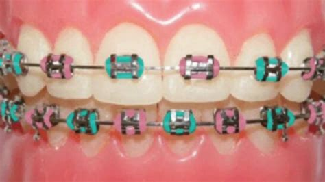color for braces braces color ideas