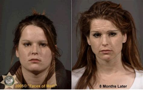Detox From Meth Use by Klb Meth Gevaarlijk Dan World Of Warcraft Vinden