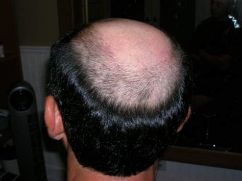 male pattern hair loss emedicine i have a question about knit hats