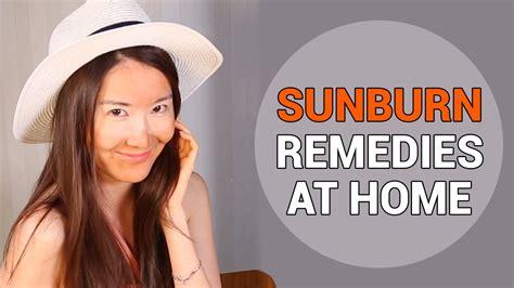 treating sunburnt skin sunburn remedies at home