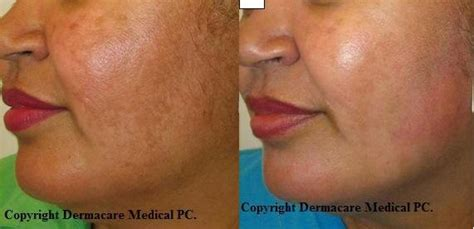 e one ipl session before and after on man and woman face new york freckle sun age spots laser treatment with ipl