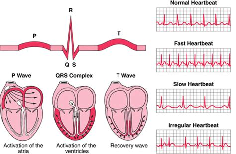 ecg pattern meaning struggling with cardiovascular system allnurses