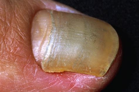 toe nail bed infection toe nail bed infection nail abnormalities nhs uk