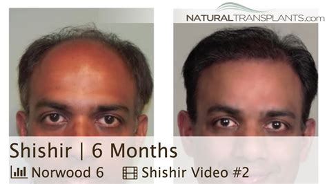 hair transplant month by month pictures best hair replacement surgery 6 month hair transplant