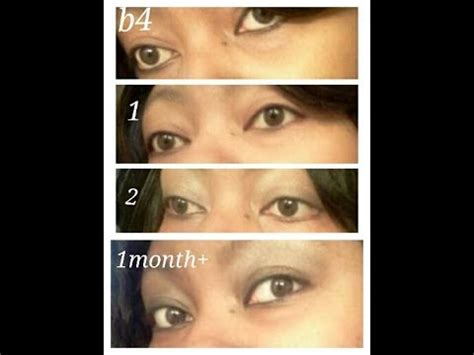 change eye color with honey honey eye drops 1month update b4 after pics