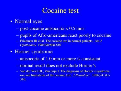 test cocaina cocaine test