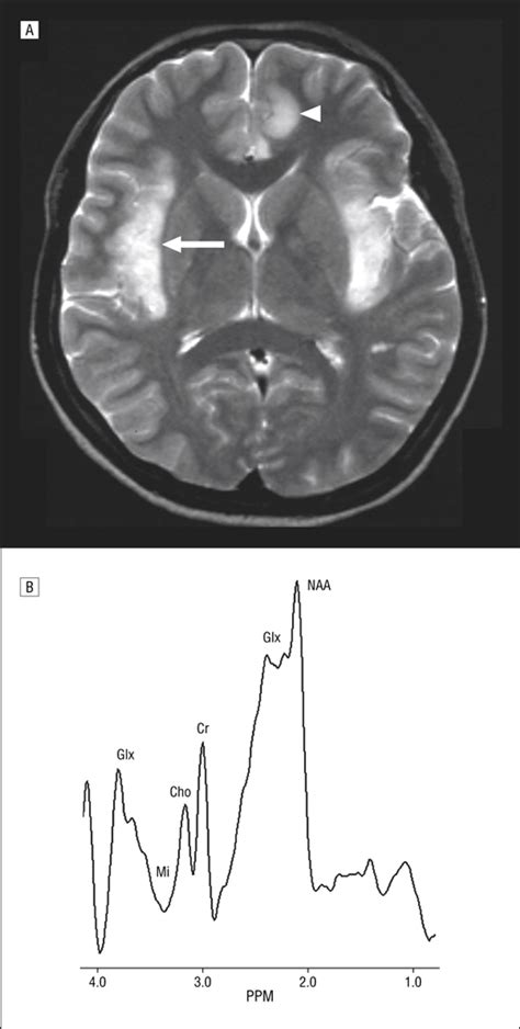n acetylaspartate supplement magnetic resonance spectroscopy in onset