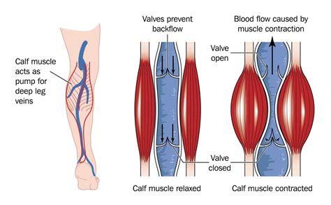 In Vein chronic venous insufficiency health media
