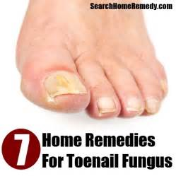 7 toenail fungus home remedies treatments cures