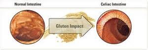 the health benefits of gluten free diet why less gluten