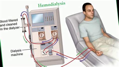 Mesin Cuci Darah Hemodialisa cara kerja mesin cuci darah pada penderita gagal ginjal