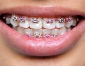 Light Pink Braces pink or light pink braces yahoo answers