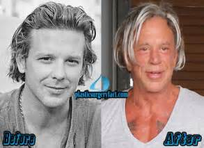 Mickey rourke face mickey rourke plastic surgery face
