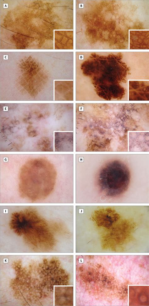 pattern analysis melanoma dark homogeneous streak dermoscopic pattern correlating