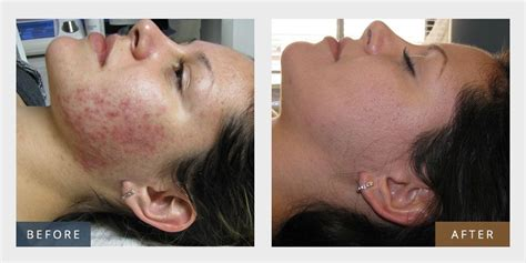 e one ipl session before and after on man and woman face beauty plus aesthetics laser center