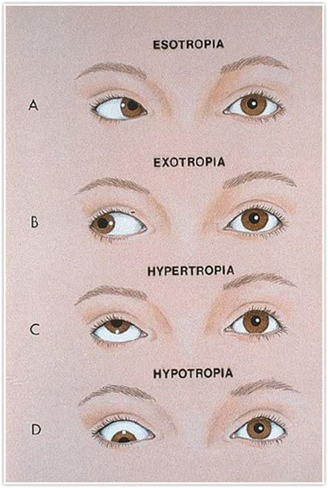 Obat Tetes Telinga Met Treating Lazy Eye Ambylopia Treatment In Detroit Mi