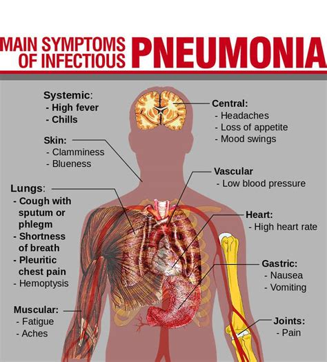 Can Detoxing Quickly Cause Pneumonia by Pneumonia No Longer The Scourge Of Humanity Healthcare News