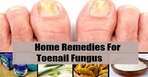 4 easy home remedies to get rid of toenail fungus