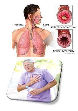 Asma Asma Asma Asma Obat Asma Penyakit Asma Ace Maxs obat untuk penyakit asma ace maxs murah