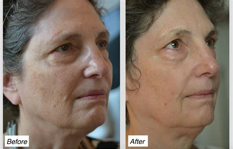 laser skin resurfacing charleston for clearer smoother
