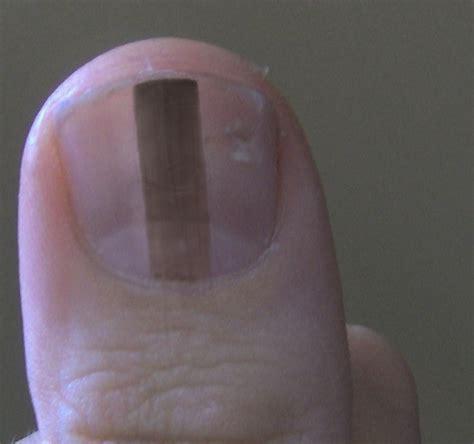 nail bed melanoma early malignant melanoma toenail pictures to pin on