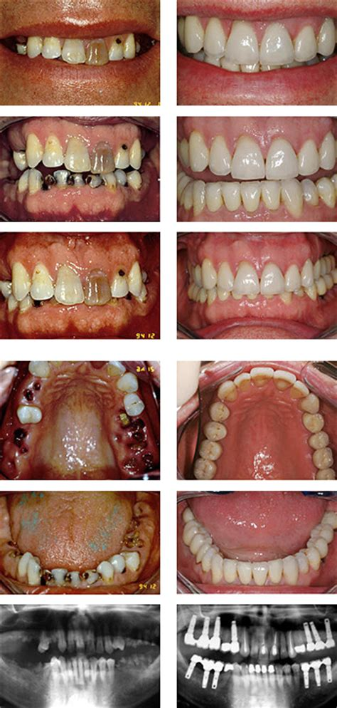 decayed teeth decayed tooth advanced dentistry