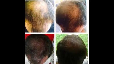 ovation hair reviews hair results 39 days on quot hair skin nails quot it works youtube