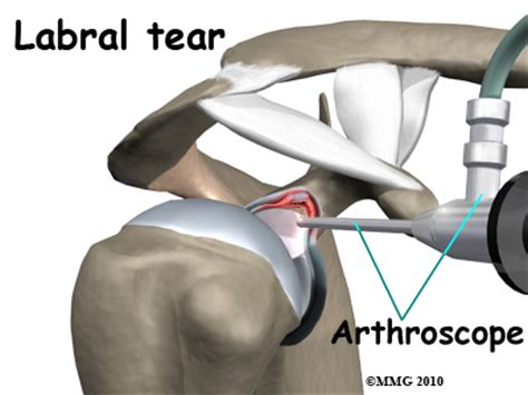 biceps tenodesis recovery table shoulder arthroscopy central orthopedic