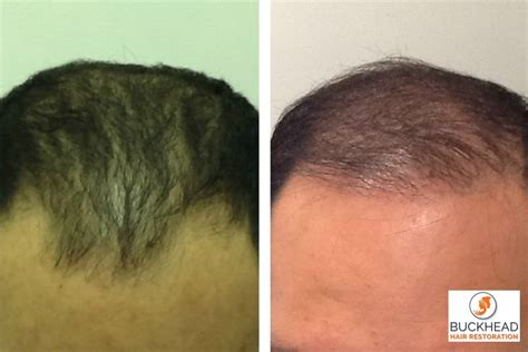 why would you lose hair from your vigian why are you losing your hair buckhead hair restoration